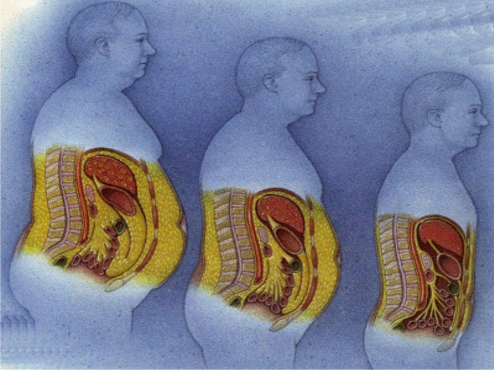 Bagaimana cara menghilangkan lemak di bagian perut?